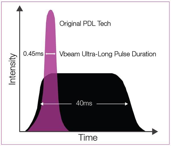 Tehnologia laser pulsat dye - cum actioneaza