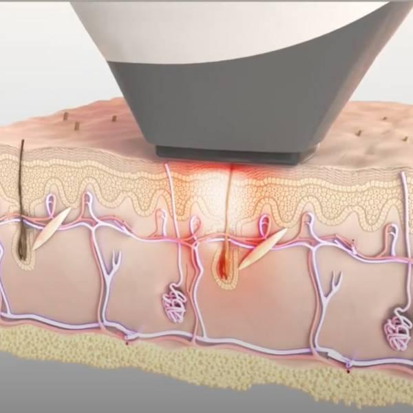 Laser dioda - Cum actioneaza tehnologia laser asupra foliculilor pilosi.